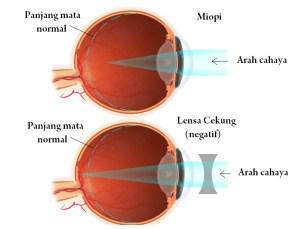 Perbedaan Mata Miopi dan Hipermetropi